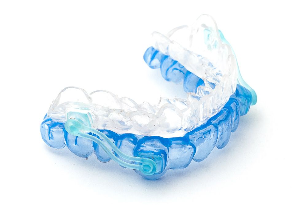 clear and blue oral appliance